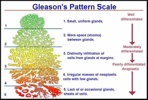 Prostate Cancer Gleason Score 6