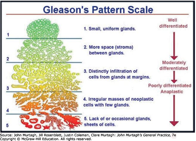 prostate adenocarcinoma gleason score 6
